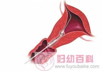 输卵管造影后多长时间不能性生活 输卵管造影多久后可以同房