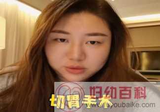 杨天真为什么要做切胃手术 做切胃手术有什么危害