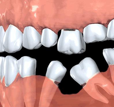 缺牙太久就不能种植牙了吗 缺牙后如何补救