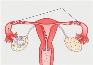 输卵管积液做腹腔镜了怀孕率还是低吗 输卵管积液处理方法