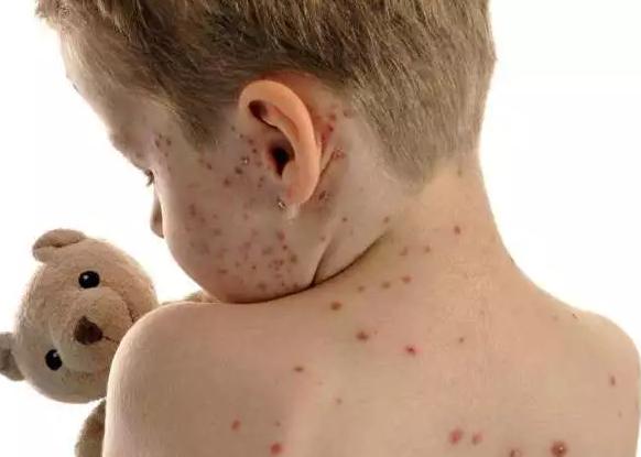 怀孕期间能接种水痘疫苗吗 怀孕期间打了水痘疫苗有什么影响