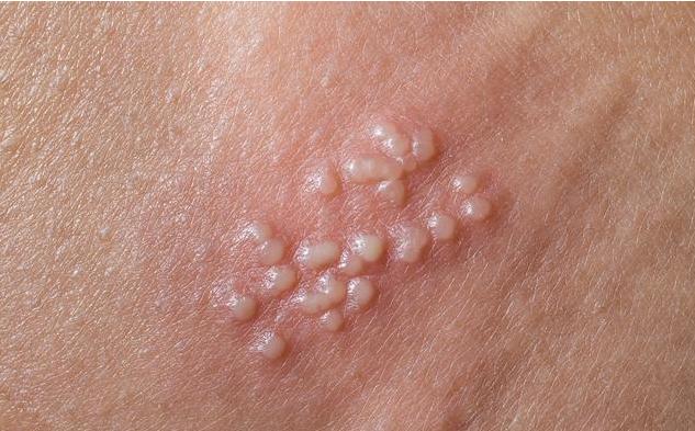 尖锐湿疣会导致不孕不育吗 尖锐湿疣治愈需要多久